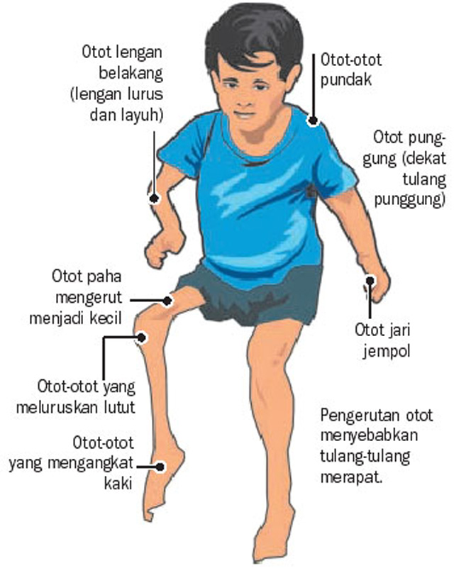 guillain barre syndrome pdf indonesia