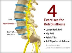 back pain simple exercises that will cure back pain pdf