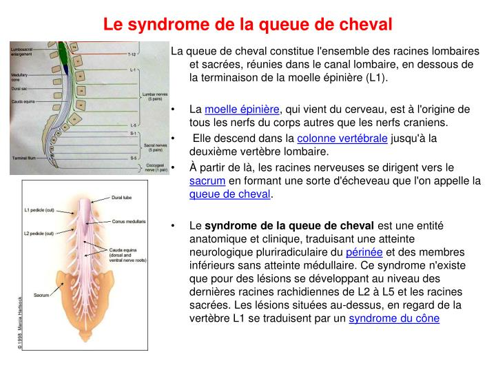 syndrome de queue de cheval pdf